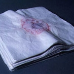 At the end of the day the top layer of tissue is removed and dated